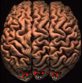 Triple hemisphere human brain