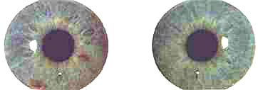 A left-brain dominant Jewel structure